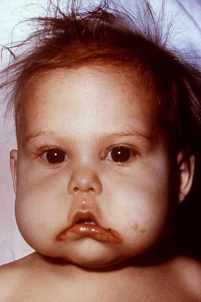 у ребёнка, страдающего квашиоркором, наблюдается истончение волос, отёчность лица, недостаток веса и отставание в росте