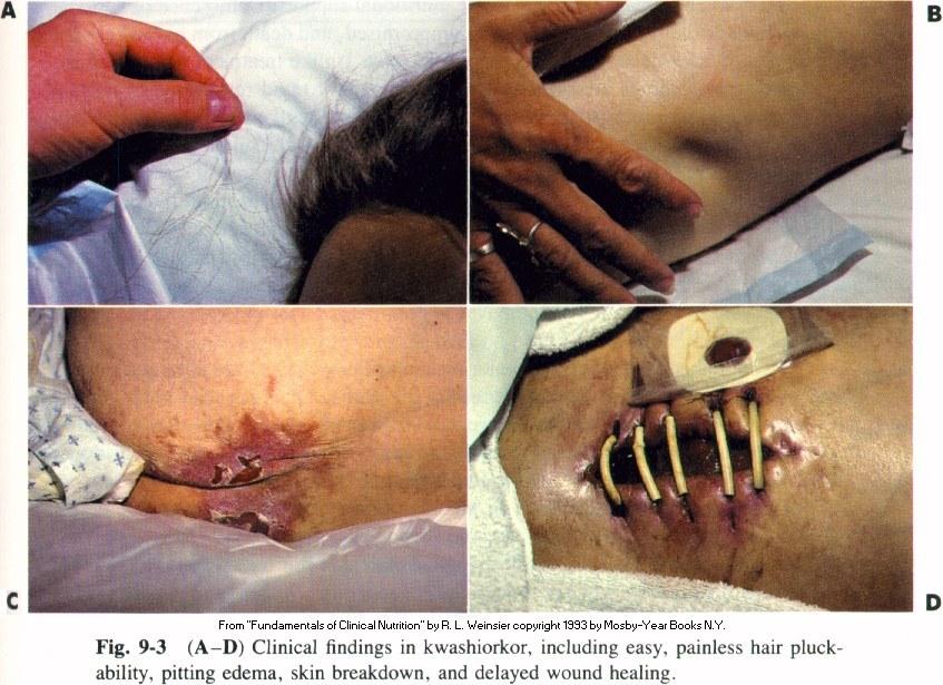 признаки квашиоркора на коже и слизистых