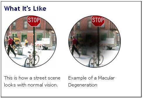 Поле зрения больных с дегенерацией