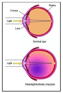 Клиника по коррекции зрения харьков