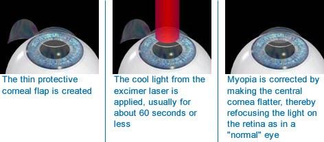 Восстановление зрения по довженко