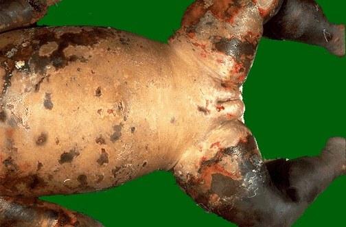 сыпь у ребенка после антибиотиков фото