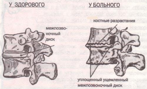 норме и при остеохондрозе