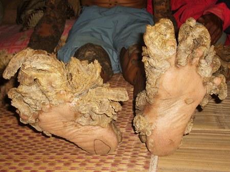 ноги Деде  Косвара