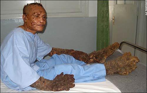 Dede Koswara в  клинике