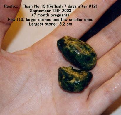 желчные камни