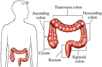 Воспаление толстого кишечника называется колит.  Это строение кишок в упрощенном виде.  Студенты учат подробнее: как...