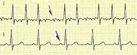 ЭКГ, ч. 3a. Пароксизмальная мерцательная аритмия и пароксизмальная ...
