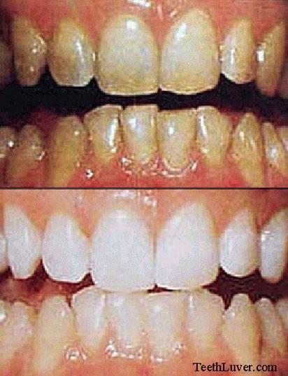 Отбеливание зубов при флюорозе - YouTube