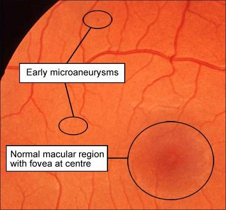 Сорок лет улучшить зрение