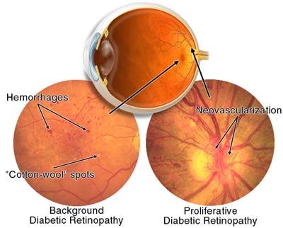 Чем питаться чтобы восстановить зрение