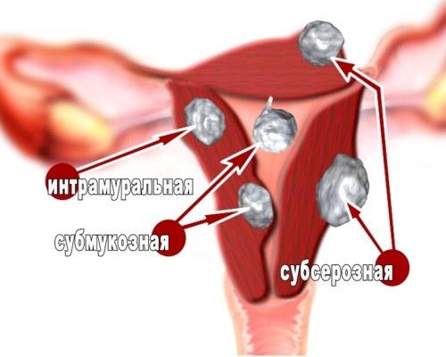 Виды миом матки. ультразвукового сканирования.