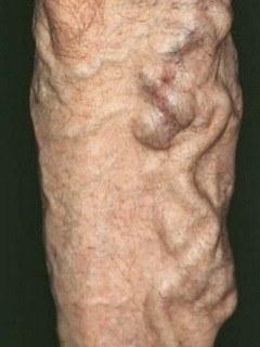 Варикозное расширение вен на ногах к какому врачу обратиться