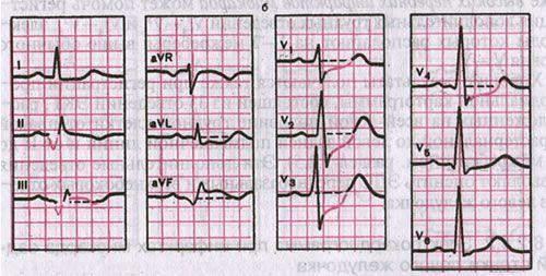 инфаркт миокарда на экг кардиограмме