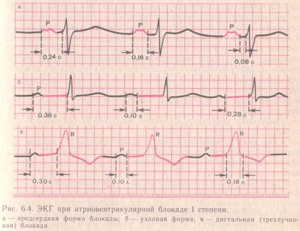 ЭКГ при атриовентрикулярной