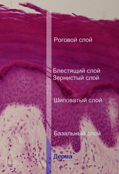 Симптомы чесотки у взрослых
