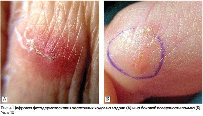 чесоточные ходы на ладони и на боковой поверхности пальца