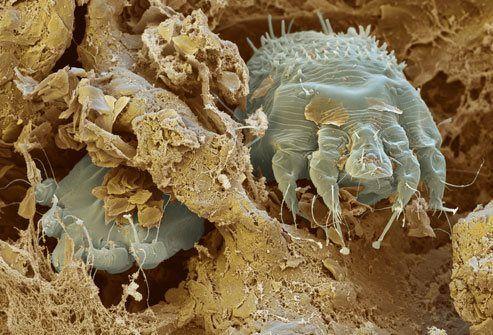 чесоточный клещ в коже под электронным микроскопом