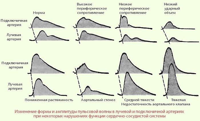 Гипертоническая болезнь 2 стадии 3 степени риск ссо 3