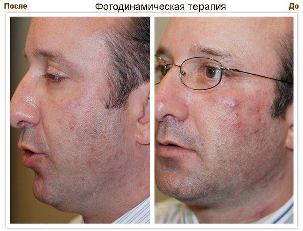 акне до и после фотодинамической терапии