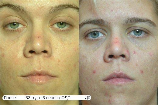 акне перед и после фотодинамической терапии
