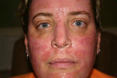 внешний вид пациента после домашнего TCA-пилинга 100%-ной кислотой через 10 дней