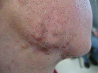 келоидные рубцы после лечения инъекциями стероидов и Vbeam лазером на красителях