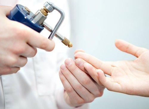 процедура криодеструкции на коже руки