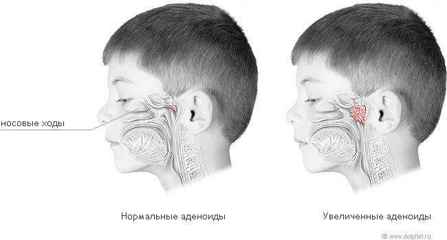 у ребенка аденоиды неприятный запах изо рта