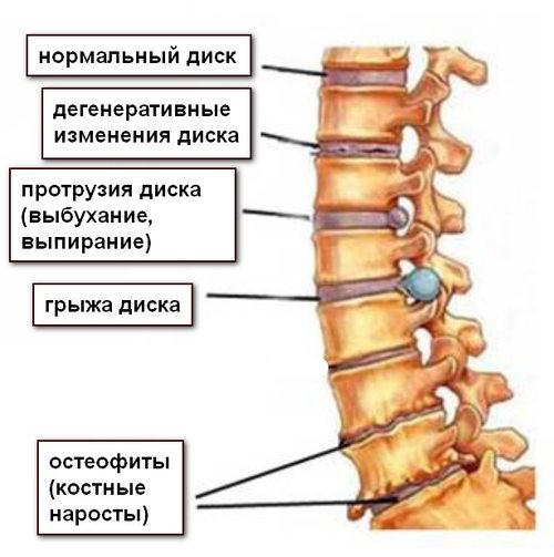 Почему при остеохондрозе болят руки